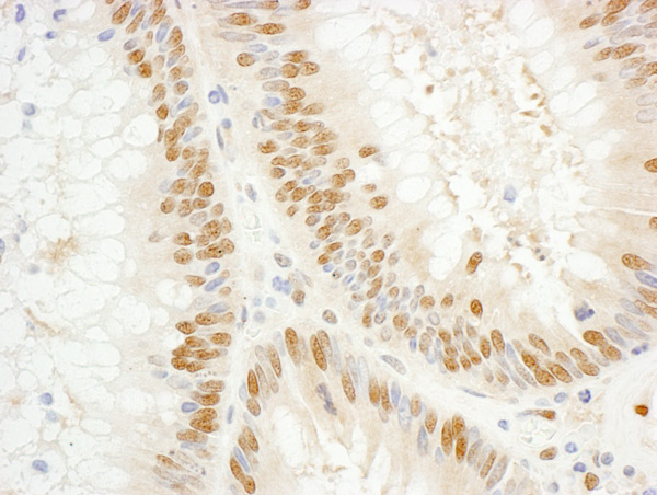 Immunohistochemistry (Formalin/PFA-fixed paraffin-embedded sections) - Anti-TFIIE alpha antibody (ab99416)
