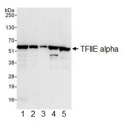 Western blot - Anti-TFIIE alpha antibody (ab99418)