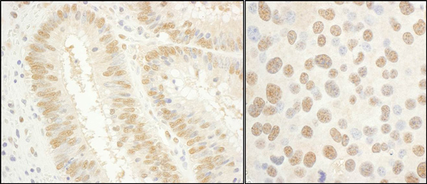 Immunohistochemistry (Formalin/PFA-fixed paraffin-embedded sections) - Anti-TFIIE alpha antibody (ab99418)